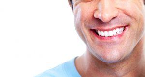facette dentaire en Tunisie